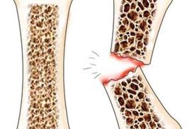 L - цистеин и борьба с остеопорозом
